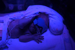 Capri channeling her inner rave spirit. Actually, she's under photo therapy lights to help her get rid of bilirubin to eliminate her jaundice.
